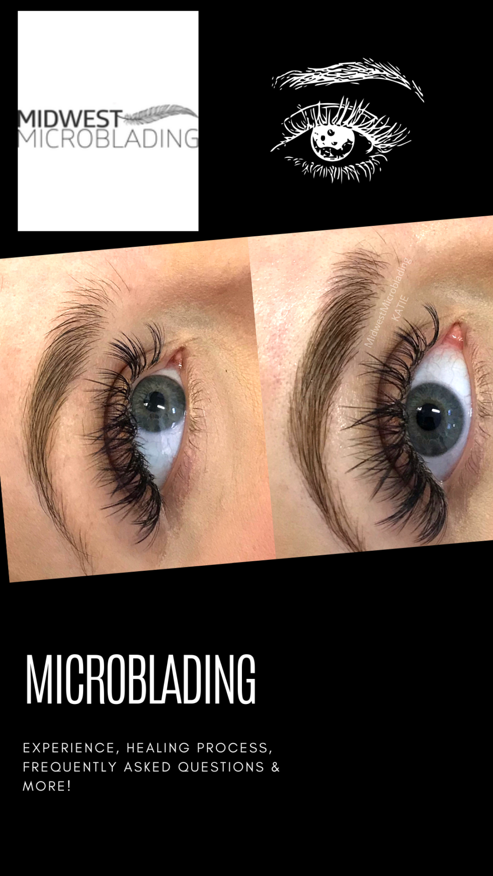 178361b105b Microblading With Midwest Microblading – AbbyBaffoe